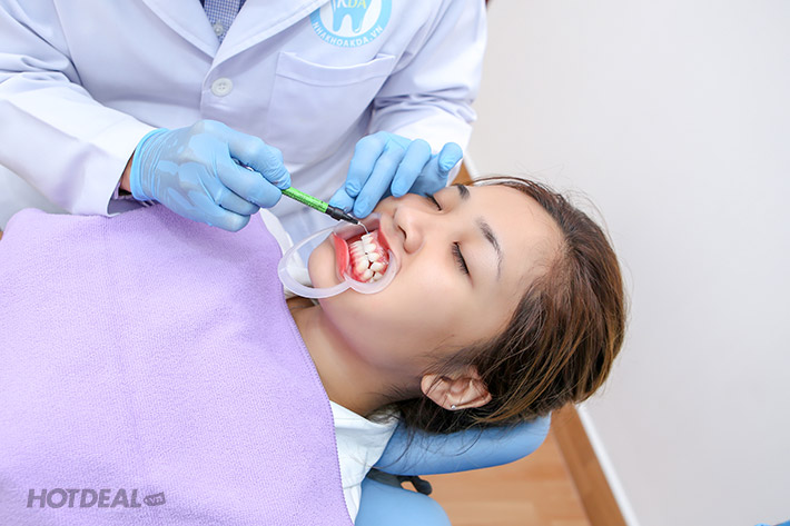 Nha Khoa Quốc Tế Sen Dental - Răng Sứ Titan - Bảo Hành 05 Năm
