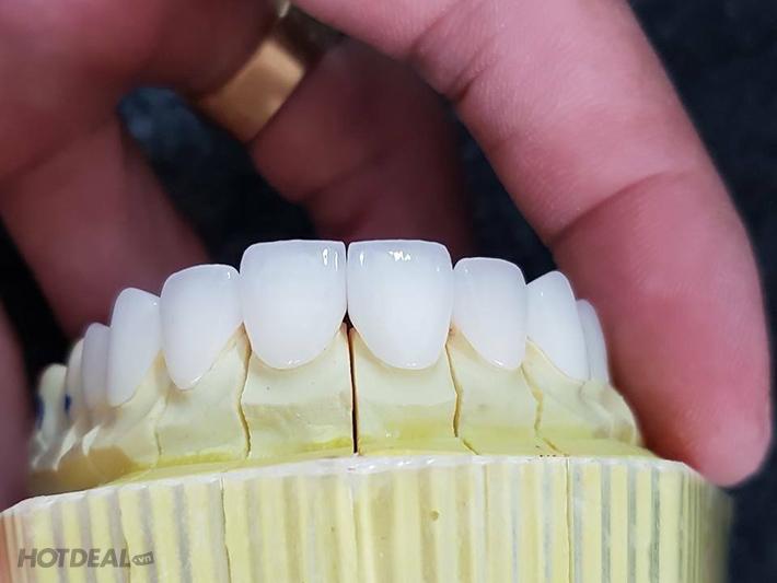Ưu Đãi Vàng Tại Nha Khoa Clucia - Răng Toàn Sứ Zirconia HT 100% Của...